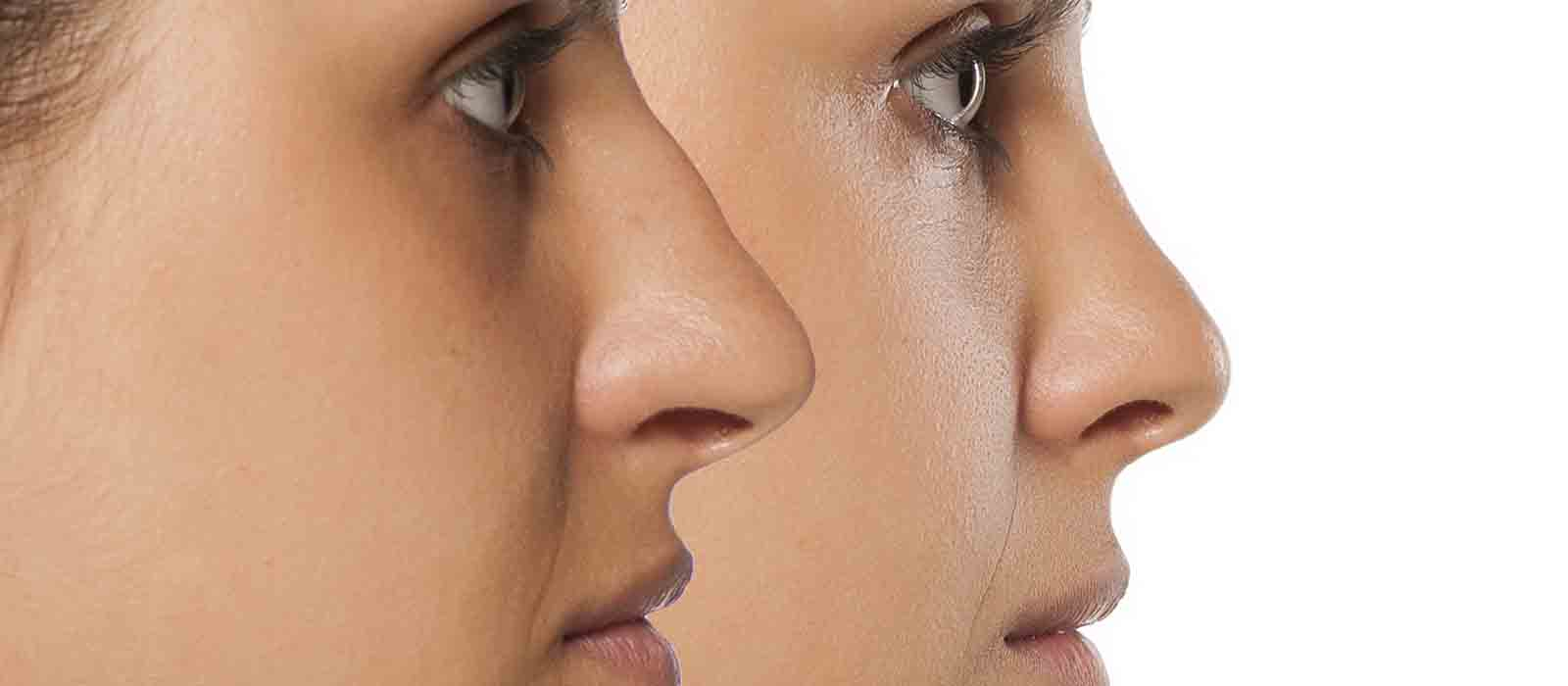 Rhinoplasty – Nose Job Perth   Quinn Plastic & Cosmetic